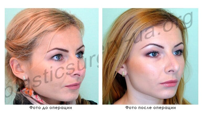 results_facial_plastic_photo3