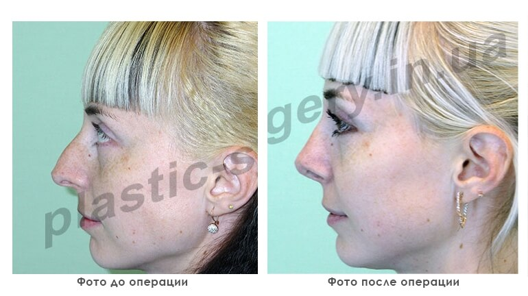 results_facial_plastic_photo4