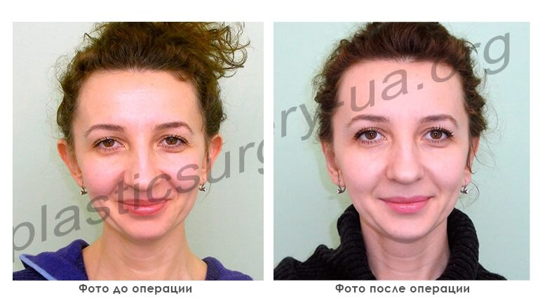 results_facial_plastic_photo5