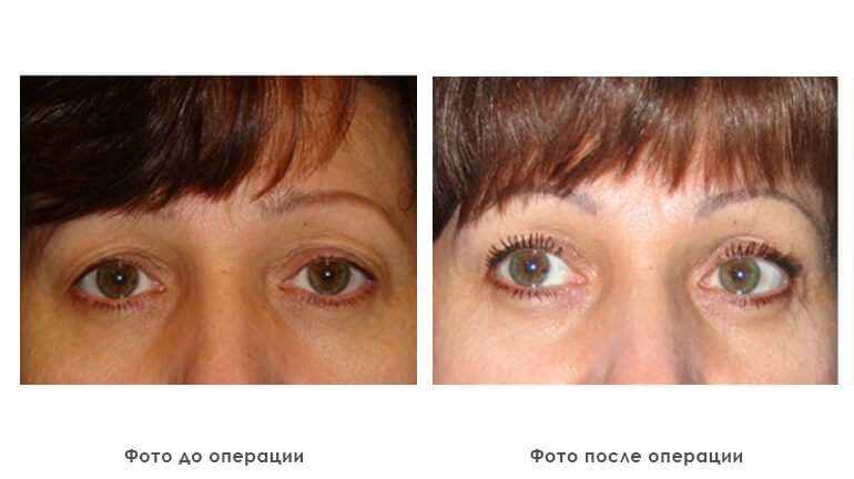 results_facial_plastic_photo6