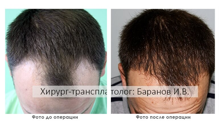 results_facial_plastic_photo7