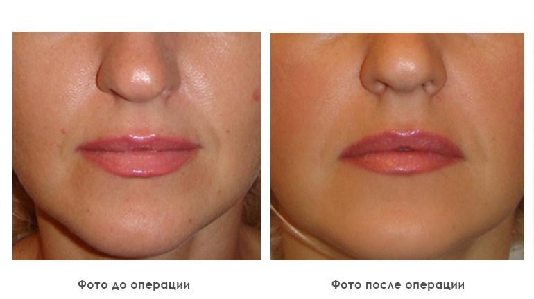 results_facial_plastic_photo8