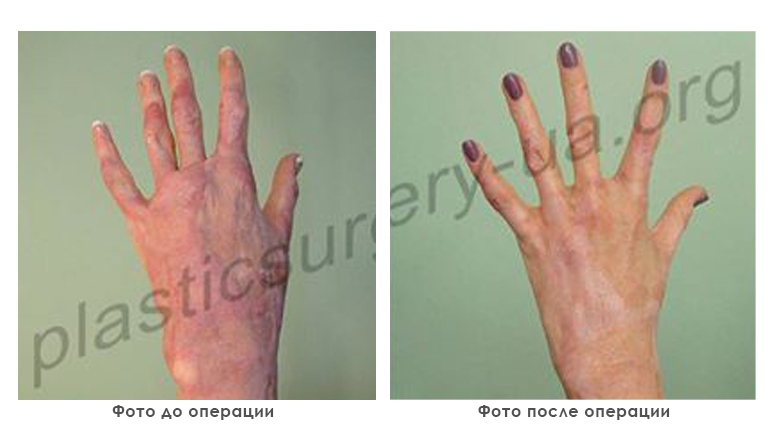 results_reconstruction_photo1