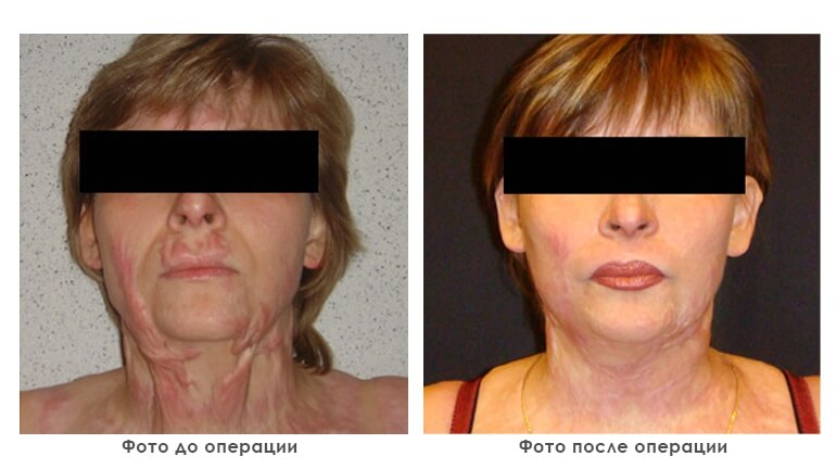 results_reconstruction_photo2