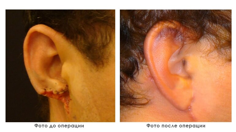 results_reconstruction_photo3