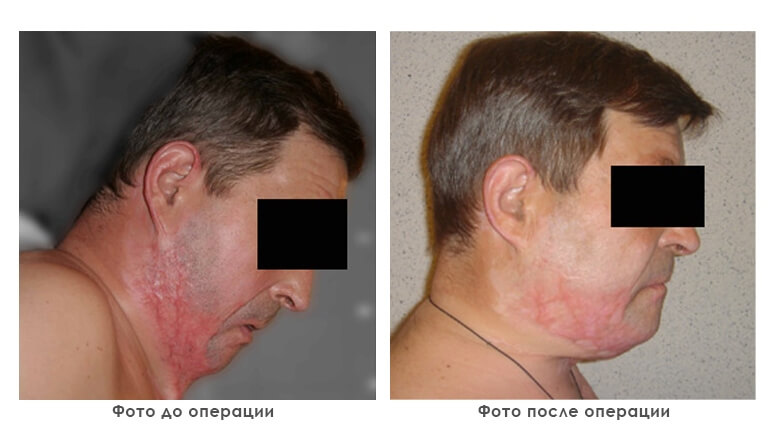 results_reconstruction_photo5