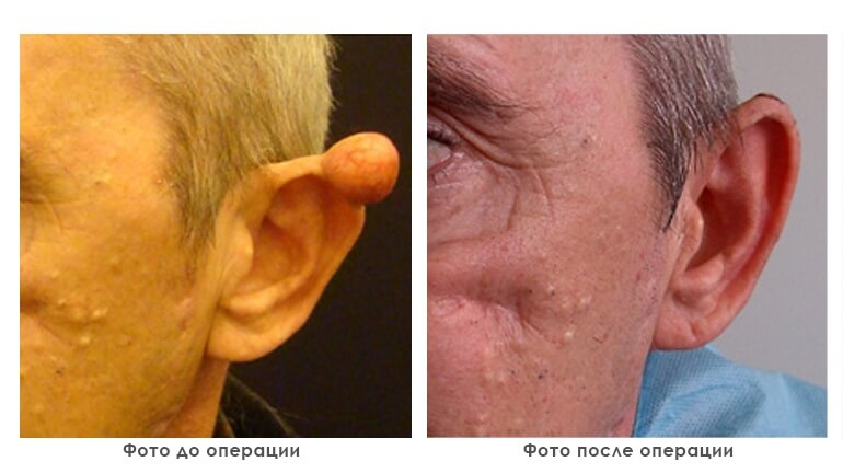 results_removal_of_tumors_photo1