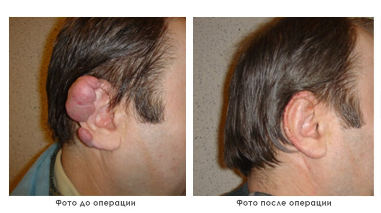 results_removal_of_tumors_photo2