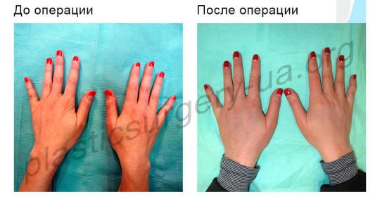 hands_antiage-540x280