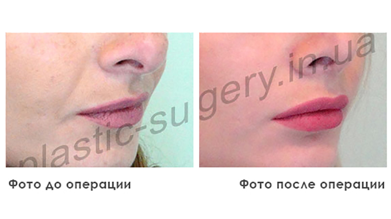 results_facial_plastic_photo1_1