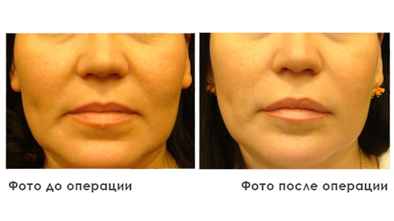 results_facial_plastic_photo2_2