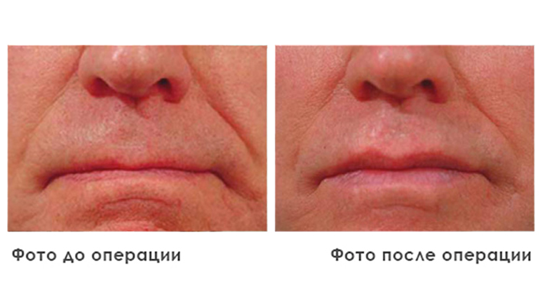 results_facial_plastic_photo3_3