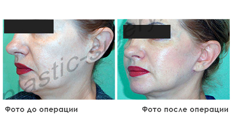 results_facial_plastic_photo4_4