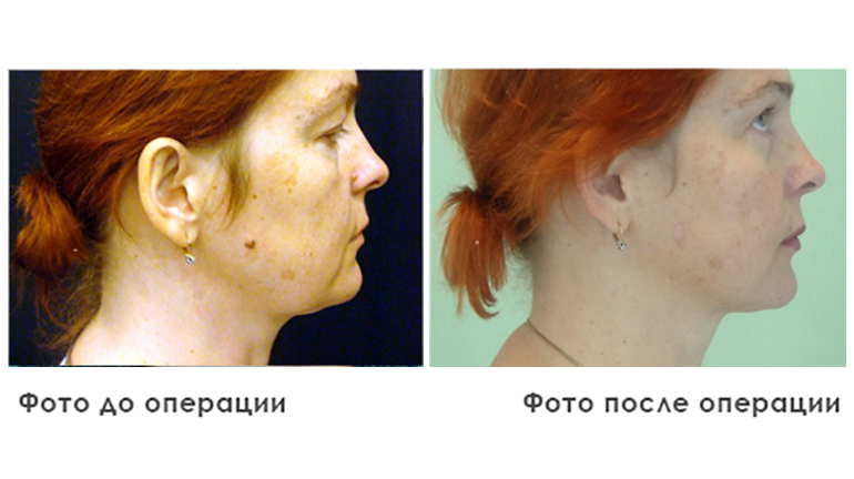 results_facial_plastic_photo5_5