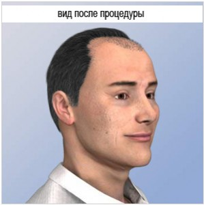 after-hair-transplantation