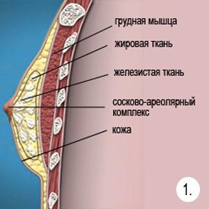 ginekomostiya_classic
