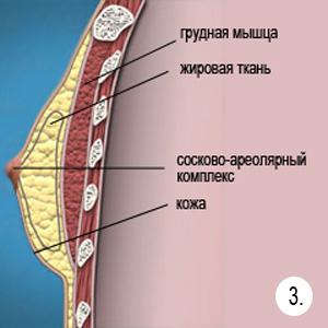 ginekomostiya_fatty
