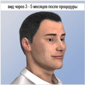 hair-transplantation-after