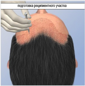 hair-transplants-procedure