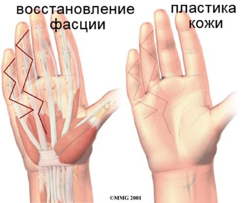 hand_dupuytrens_surgery