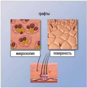 microscopic-hair