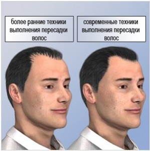 old-new-technique-hair-transplants