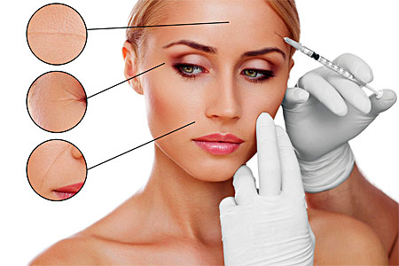 procedury-botox