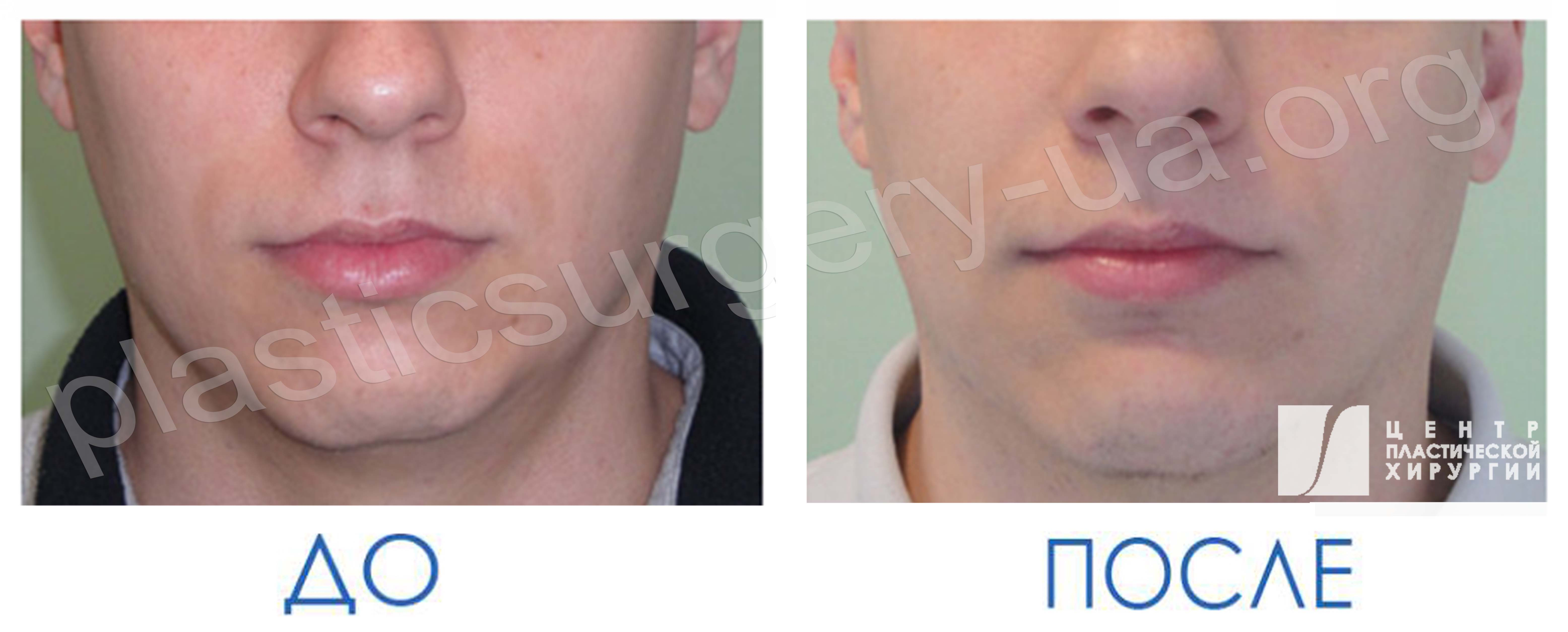 results_facial_plastic_photo6_6