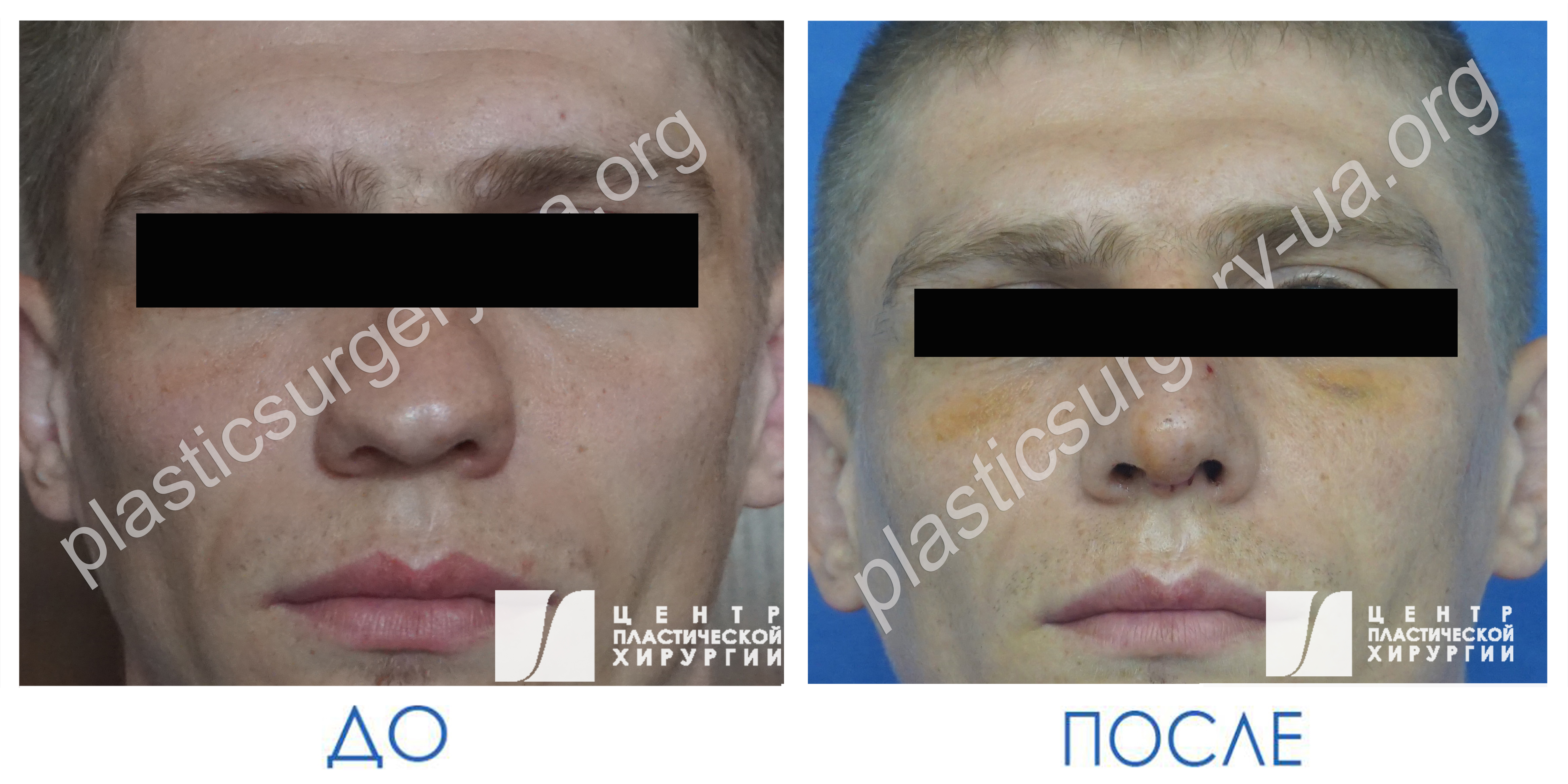 results_facial_plastic_photo1